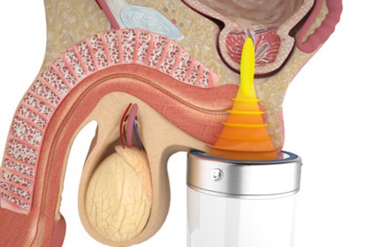 частое мочеиспускание и эректильная дисфункция у мужчин